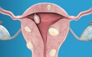 Болезненные месячные после родов: норма или патология