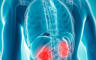 Химиотерапия при раке яичников: виды, лекарства, последствия