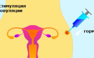 Что такое гиперстимуляция яичников: симптомы, последствия, диета