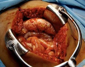 Трансректальная лапаротомия: что это, показания, как проводится