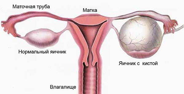Опухоль яичника у женщин: симптомы, причины, виды, лечение