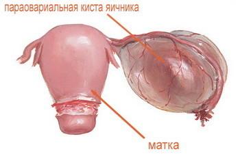 Параовариальная киста справа: что это такое, симптомы, лечение
