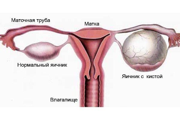 Киста яичника в менопаузе: что делать и как лечить