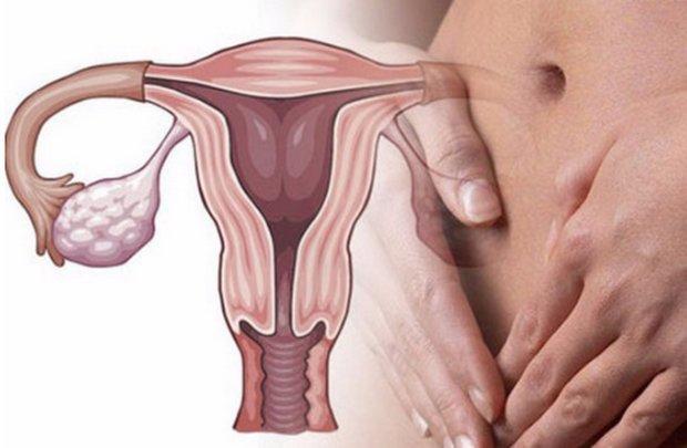 Хронический оофорит: что это, признаки, лечение, беременность
