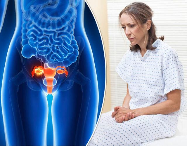 Гистология кисты яичника после операции и во время нее