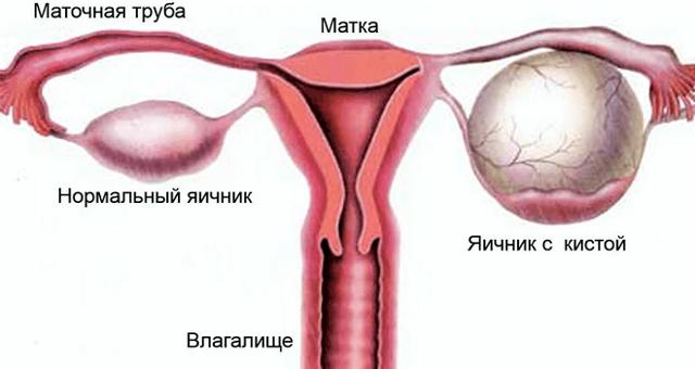 Фолликулярные яичники: что это такое, диагностика, лечение