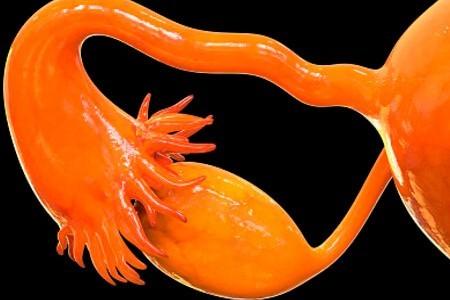 Где находятся яичники и возможные патологии расположения