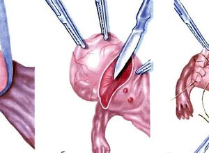 Эндометриоидная киста и беременность: совместимость, ЭКО