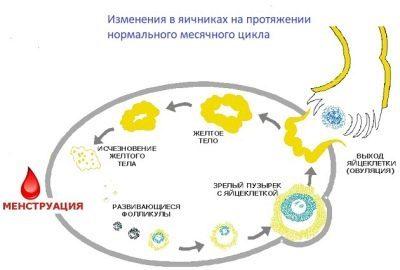 Два желтых тела в одном яичнике: что значит, при беременности