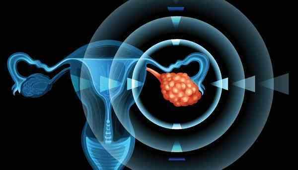 Анэхогенное образование в яичнике: что это такое, причины