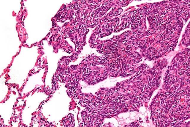 Саркома яичника: что это, диагностика, лечение