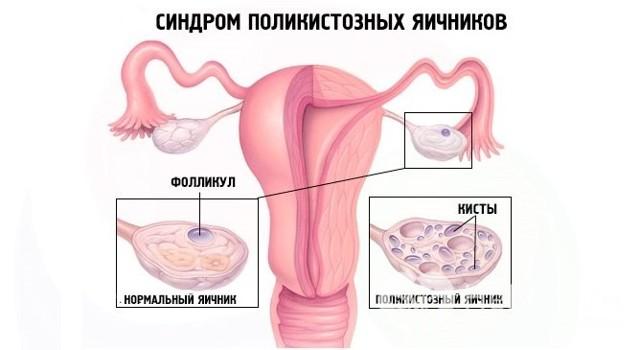 Дисфункция яичников: что это такое, симптомы, признаки, лечение
