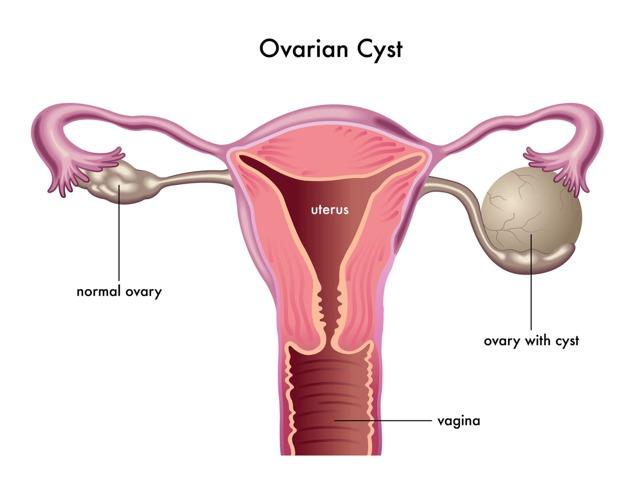 Ретенционное образование левого яичника: что это такое, лечение
