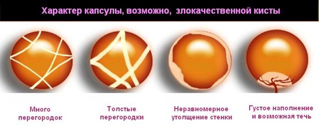 Как выглядит киста яичника и что внутри новообразования