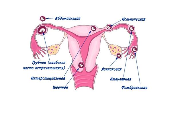 Спайки на яичниках: симптомы, причины, лечение