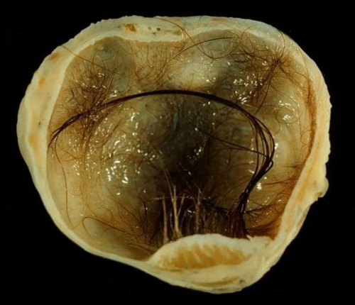 УЗИ яичников у женщин: показания, подготовка, как проводиться