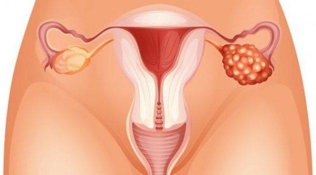 Один яичник больше другого у женщин: причины, лечение