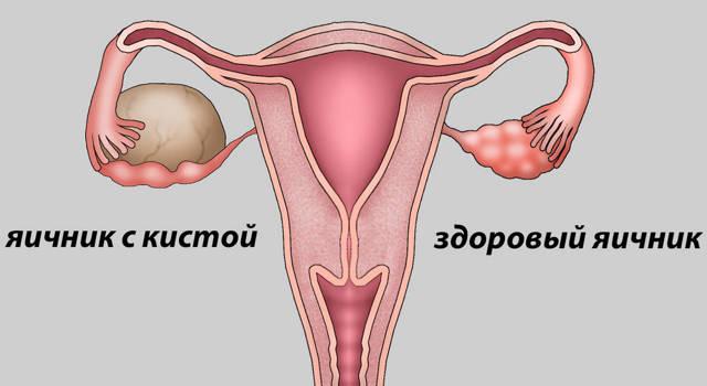 Гиперэхогенные включения в яичнике: что это такое