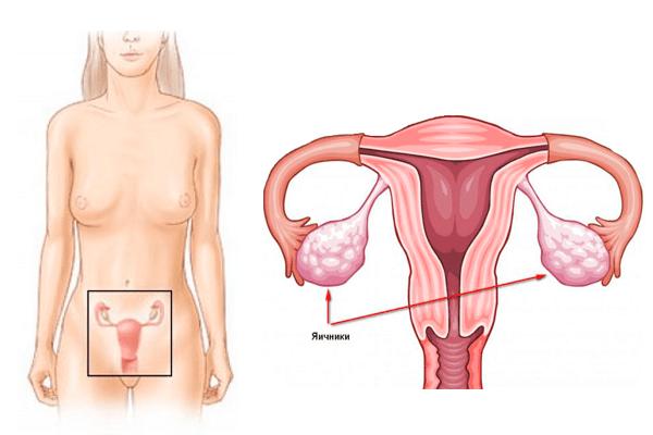 Увеличен яичник: причины, симптомы, методы лечения
