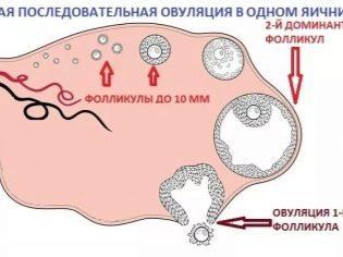 Мало фолликулов в яичниках: как лечить и забеременеть