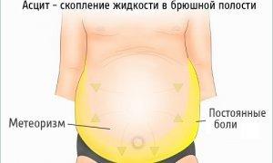 Рак яичников у женщин: симптомы и сколько живут