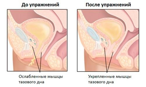 Удаление матки способы операции