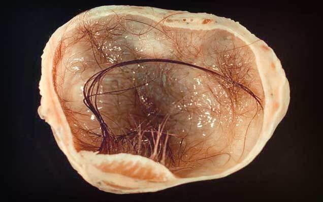 Тератома яичника: что это такое, причины, лечение, лапароскопия