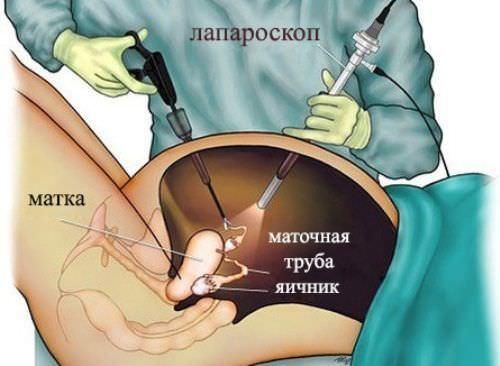 Фолликулярная киста и беременность: возможно ли зачатие, ЭКО