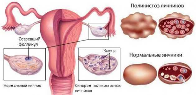 Термокаутеризация яичников: что это, как проводится, реабилитация