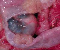 Что такое цистаденома яичника и как ее лечить