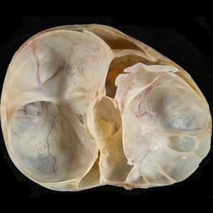 Отличие кисты от кистомы яичника: главные показатели