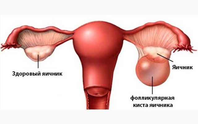 Разрыв фолликулярной кисты яичника: симптомы, лечение