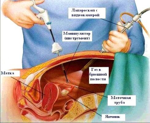 Ретенционная киста яичника: симптомы, причины и методы лечения