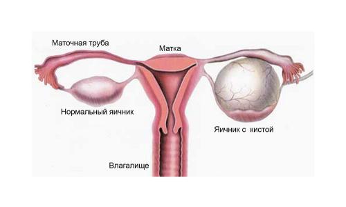 Киста яичника: последствия, осложнения, профилактика