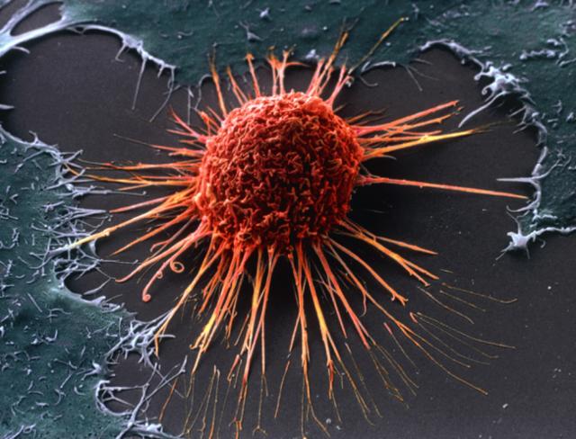 Рак яичника 1,2 стадия: сколько живут, прогноз выживаемости, питание