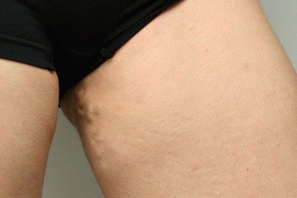 Варикоз яичников: что это, симптомы, диагностика, лечение