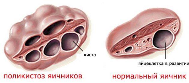 Склерокистоз яичников: что это такое, причины, симптомы, лечение