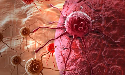 Гипоэхогенное образование в яичнике: что это такое, лечение
