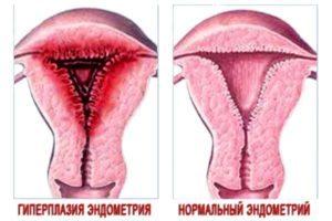 Кровотечение в менопаузе: причины, симптомы, лечение