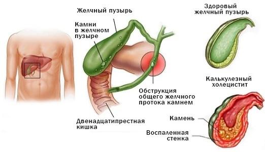 Перед месячными болит правый бок: причины, профилактика