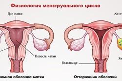 Перед месячными кружится голова: причины и средства лечения