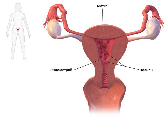 Аномальные маточные кровотечения: виды, диагностика и лечение