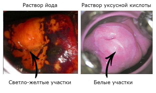 Можно ли делать кольпоскопию во время месячных: основные нюансы