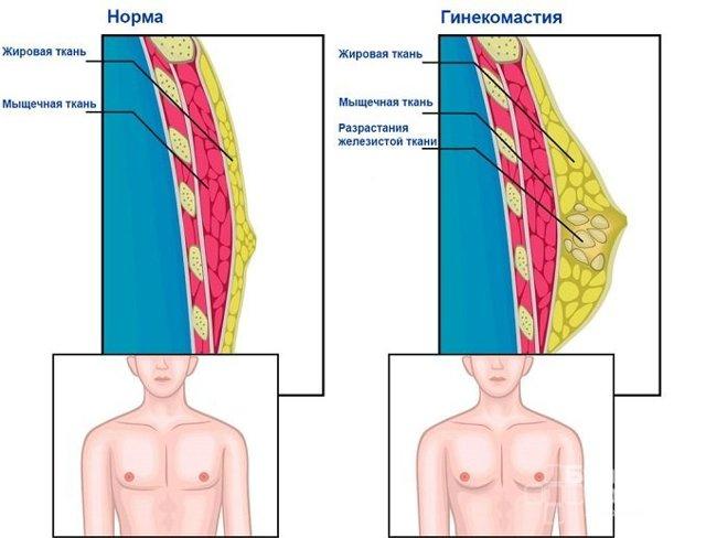 Эстрадиол у мужчин: симптомы повышения и понижения