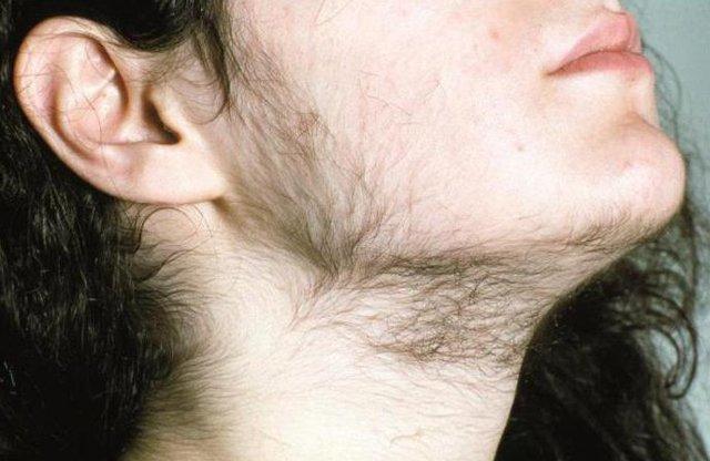 ЛГ гормон: о чем предупреждает повышение и снижение концентрации