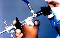 Месячные после гистероскопии: обильные месячные, причины