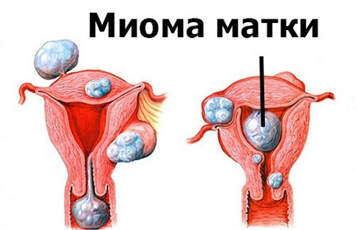 Межменструальные кровотечения: причины в разном возрасте