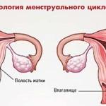 Цвет крови при месячных: алый, черный или коричневый