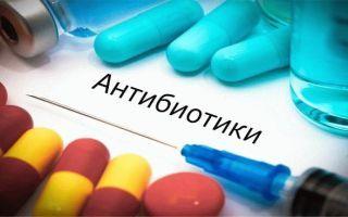 Задержка месячных после антибиотиков: основные причины