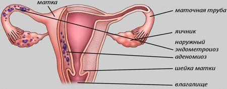 Аденомиоз матки: причины, симптомы и возможности лечения
